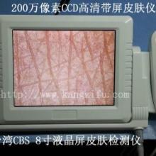 供应高清8寸液晶屏皮肤检测仪器一体机皮肤仪